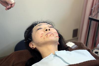 「美容」と「育毛」に鍼?!専門学校が営む鍼灸院に突撃。